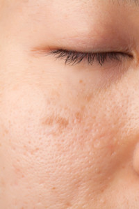 Women with oily face with scar and skin problem